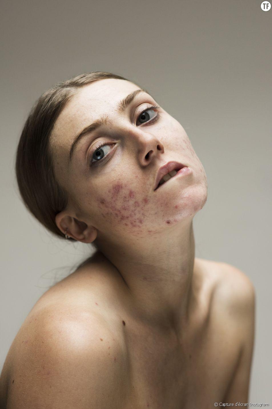 """Les portraits ultra """"skin positive"""" de Sophie Harris-Taylor."""