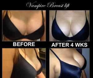 Le vampire lift des seins : avant/après