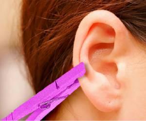 Accrocher une pince à linge à son oreille, la solution contre le mal de tête ?