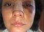 Les blessures de l'actrice Eileen Moreno, symboles des violences conjugales en Colombie