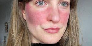 Elles posent sans filtre ni maquillage pour sensibiliser à la rosacée