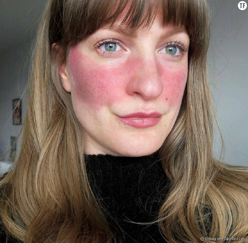 Elles posent sans filtre ni maquillage pour sensibiliser sur la rosacée