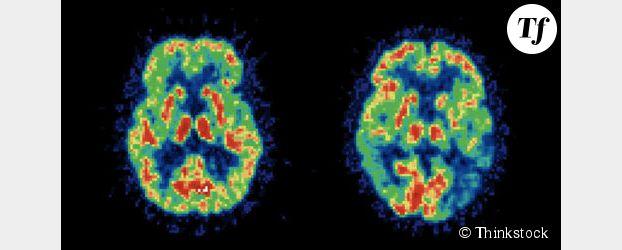 Alzheimer : la vitamine D et les oméga 3, nouvelles pistes de traitement ?