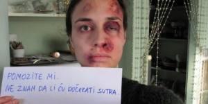 Violences conjugales : une femme battue se photographie tous les jours - vidéo