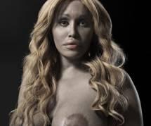 Le corps après la chirurgie plastique : les portraits de Phillip Toledano
