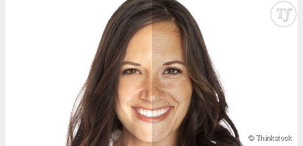 Solutions et traitements contre l'acné