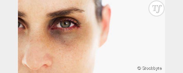 Violence conjugale : un mort tous les deux jours sous les coups de son concubin
