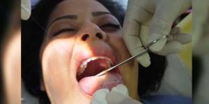 Régime : le patch cousu sur la langue, solution miracle (et dangereuse) - vidéo