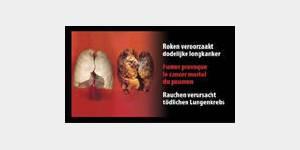 Tabac : des images chocs obligatoires sur les paquets de cigarettes