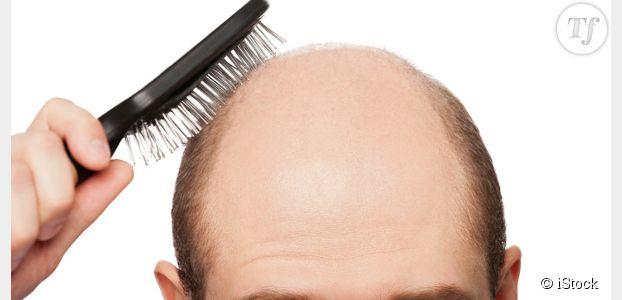 Calvitie : un traitement miracle pour faire repousser les cheveux enfin trouvé ?