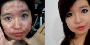 Cacher ses boutons : les conseils d'une ado souffrant d'une forme grave d'acné - vidéo