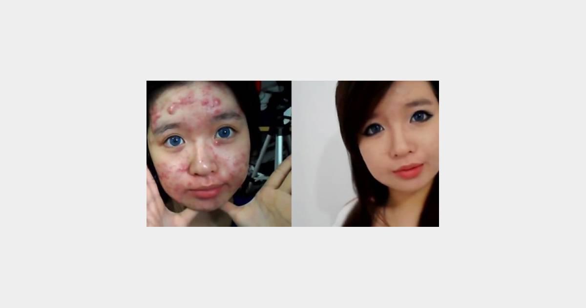 94c86d0fed08 Cacher ses boutons   les conseils d une ado souffrant d une forme grave  d acné - vidéo - Terrafemina