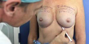 Prothèses PIP : un registre national des implantations mammaires créé au Royaume-Uni