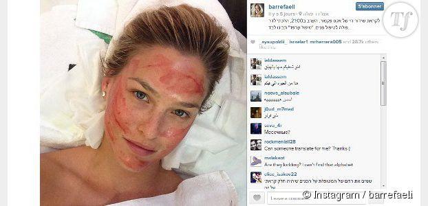 Bar Refaeli teste les injections de sang comme Kim Kardashian