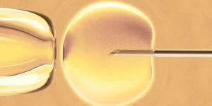 Un bébé à trois parents, c'est pour bientôt mais comment ça marche ?