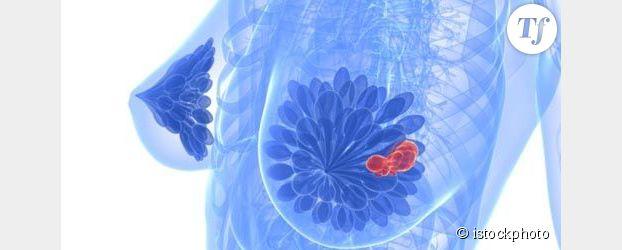 Cancer du sein, la France piétine