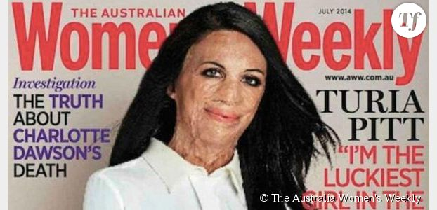 Un magazine féminin australien ose mettre une grande brûlée en couverture