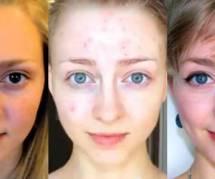 Elle prend des selfies pendant 6 ans pour lutter contre sa maladie