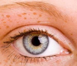 #Freckles : les (fausses) taches de rousseur, c'est tendance