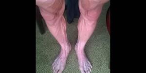 Tour de France : les jambes d'un coureur dans un sale état après une étape - photo