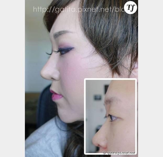 Nao avant et après la pose de son faux nez.