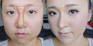 Envie de changer de nez ? La recette hallucinante pour se faire une rhinoplastie maison
