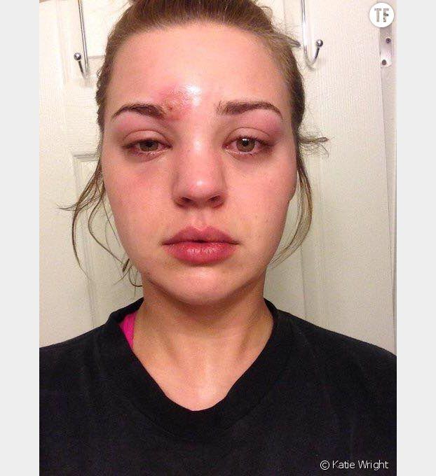 Katie Wright s'est retrouvée avec un staphylocoque près de l'oeil