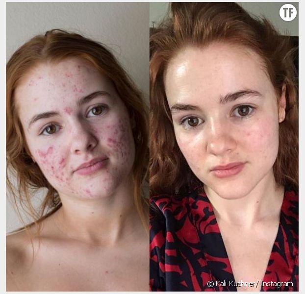 My Face Story : sur Instagram, le récit de son combat contre l'acné devient viral