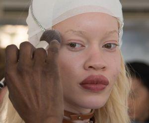 Diandra Forrest, premier mannequin albinos à devenir égérie