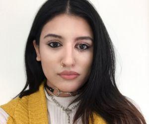 Victime d'une attaque à l'acide, elle poste un selfie de sa guérison et fait le buzz