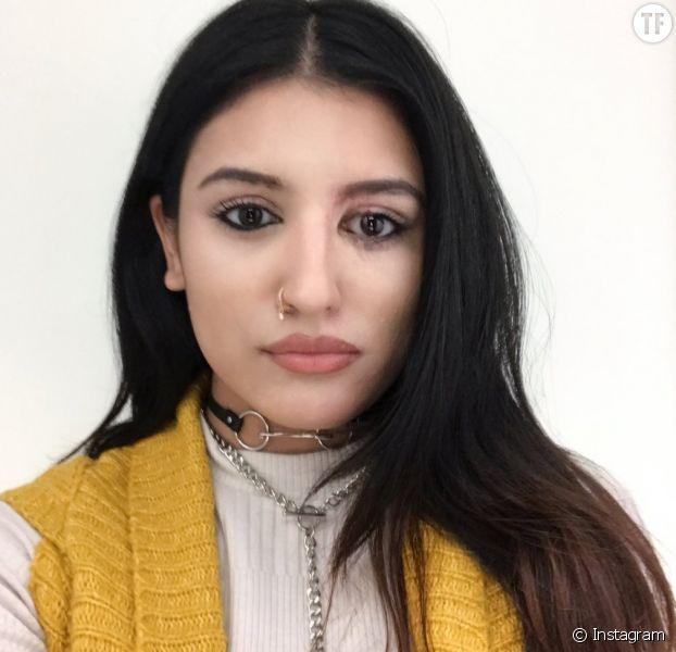 Victime d'une attaque à l'acide, elle poste un selfie de sa guérison sur Instagram