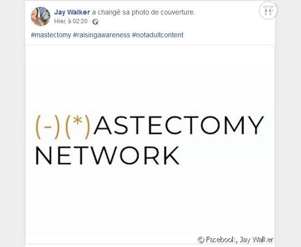 Masectomy Network