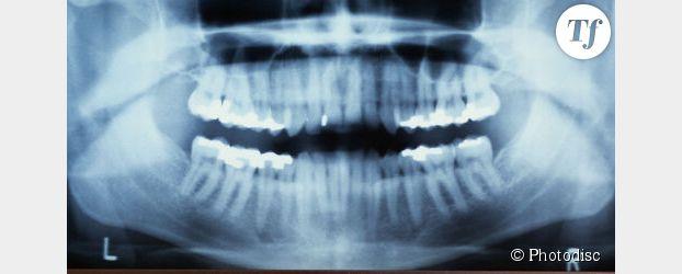 Radios dentaires : causes de tumeurs au cerveau ?