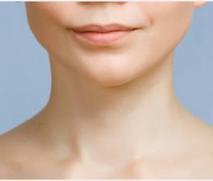 Chirurgie esthétique : l'augmentation du menton est à la mode