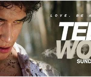 Teen Wolf Saison 2 : diffusion en France et épisode en streaming VOST