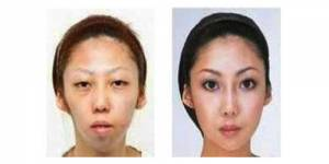 Chirurgie esthétique : une femme attaquée par son mari pour physique trompeur