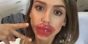 #lippatch : faut-il succomber au patch repulpant pour les lèvres ?
