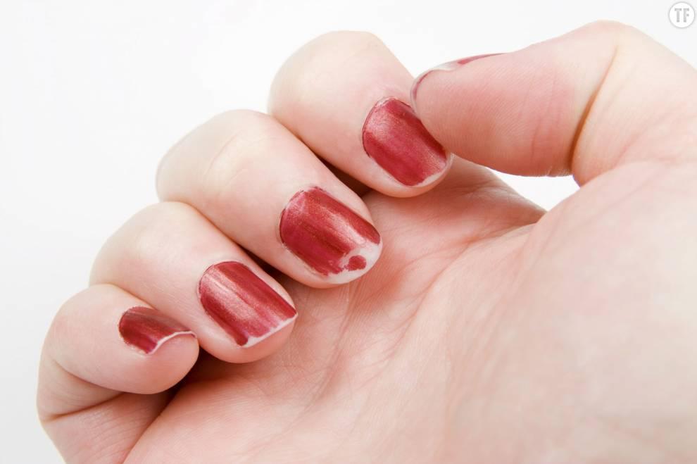 Nos ongles écaillés en disent long.
