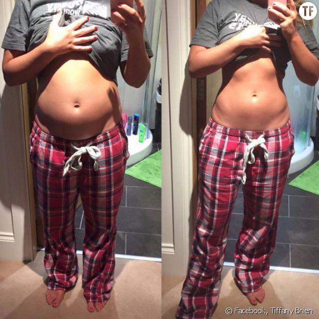 Une blogueuse montre son ventre ballonné