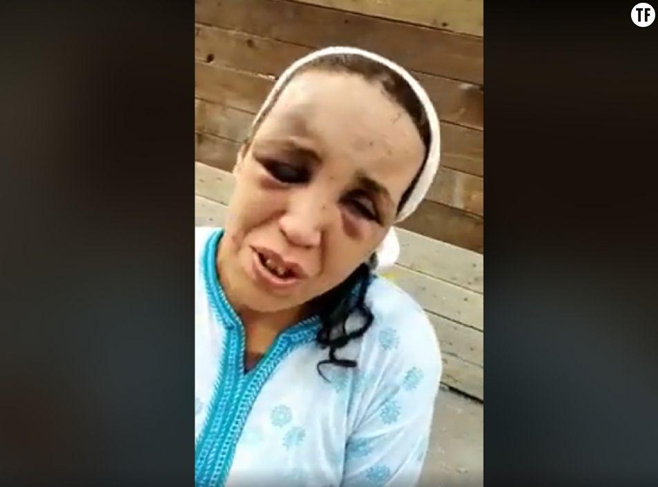 Une femme marocaine battue dévoile ses blessures. Capture d'écran Facebook.