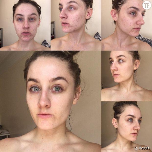 De l'eau micellaire pour guérir l'acné et la peau sèche