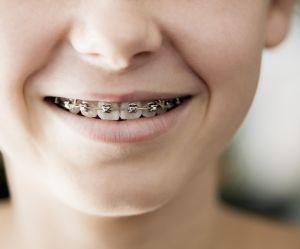 Mon enfant a des bagues dentaires : comment l'aider à les accepter